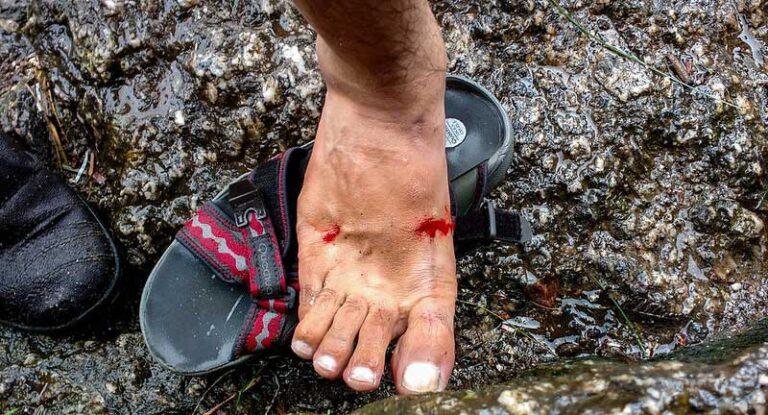 foot with leech bites